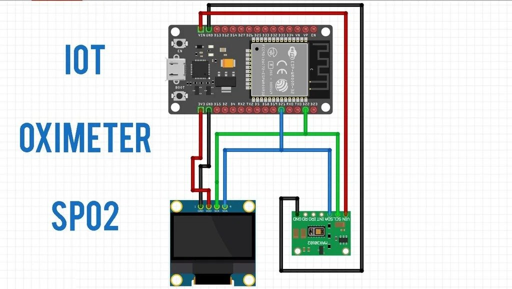 Пульсоксиметр с технологией IOT (Интернет вещей)